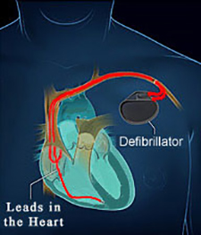 Katy Texas Defibrillator (ICD) Placement